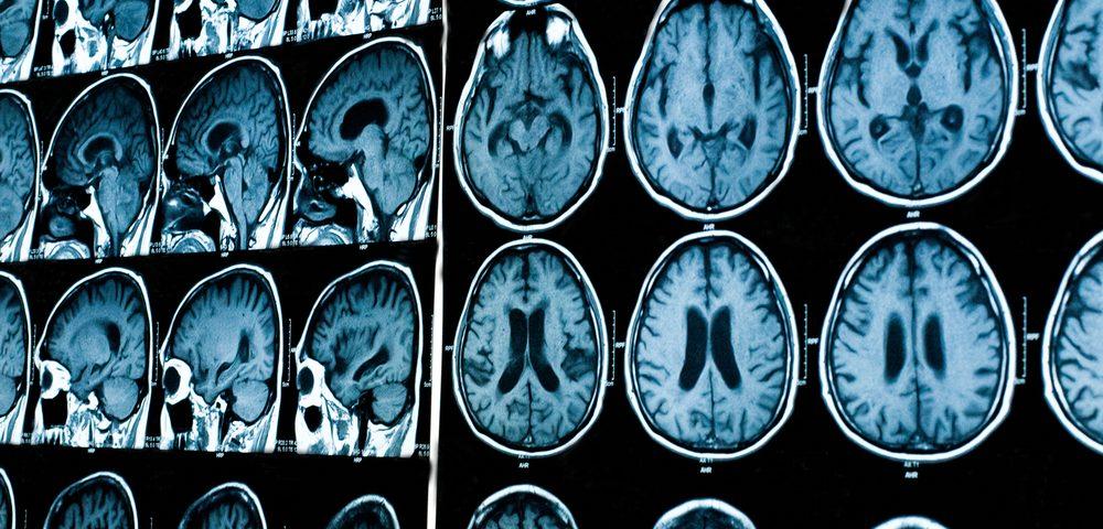 Когда необходимо делать МРТ головного мозга