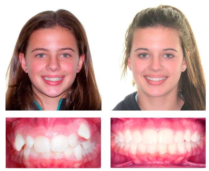 Исправление прикуса. Советы опытных стоматологов
