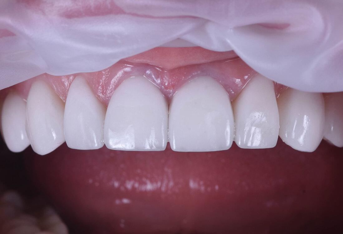 Необычный способ решения потемневших зубов