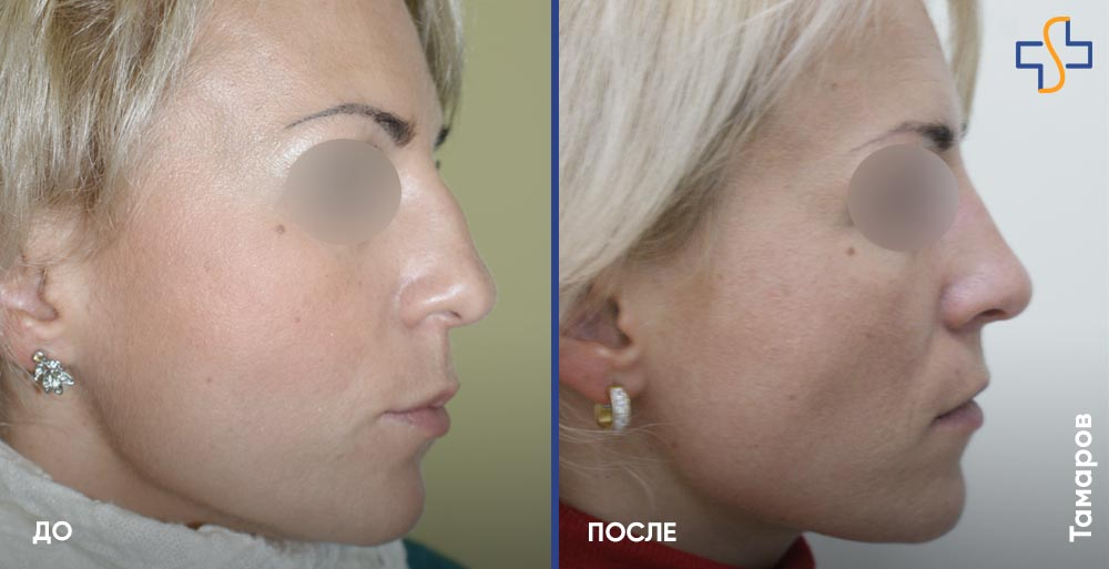Пластика носа – 7 вопросов о популярной пластической операции