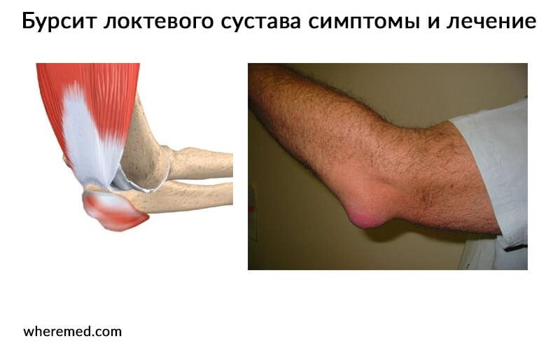 Бурсит локтевого сустава – симптомы и лечение