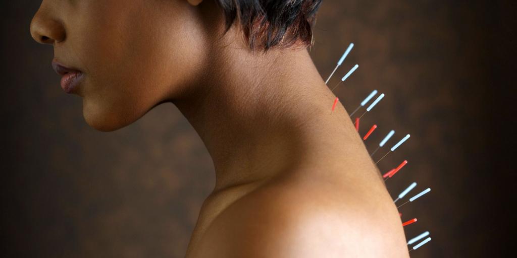 Польза и вред иглотерапии