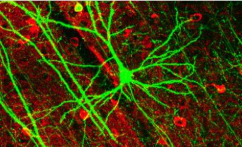Разработан способ восстановления нервных клеток