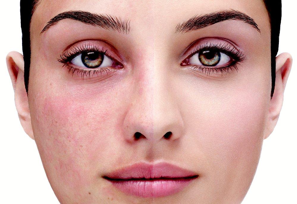 Лазерное удаление сосудов на лице