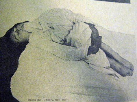 Кататония — симптомы и лечение