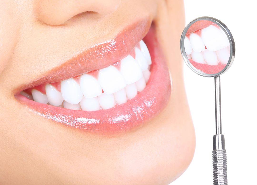 Отбеливание зубов у стоматолога и в домашних условиях: описание и цена, преимущества и недостатки