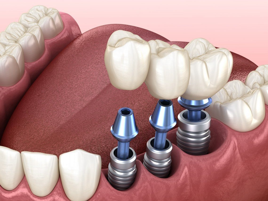 Имплантация зубов под ключ