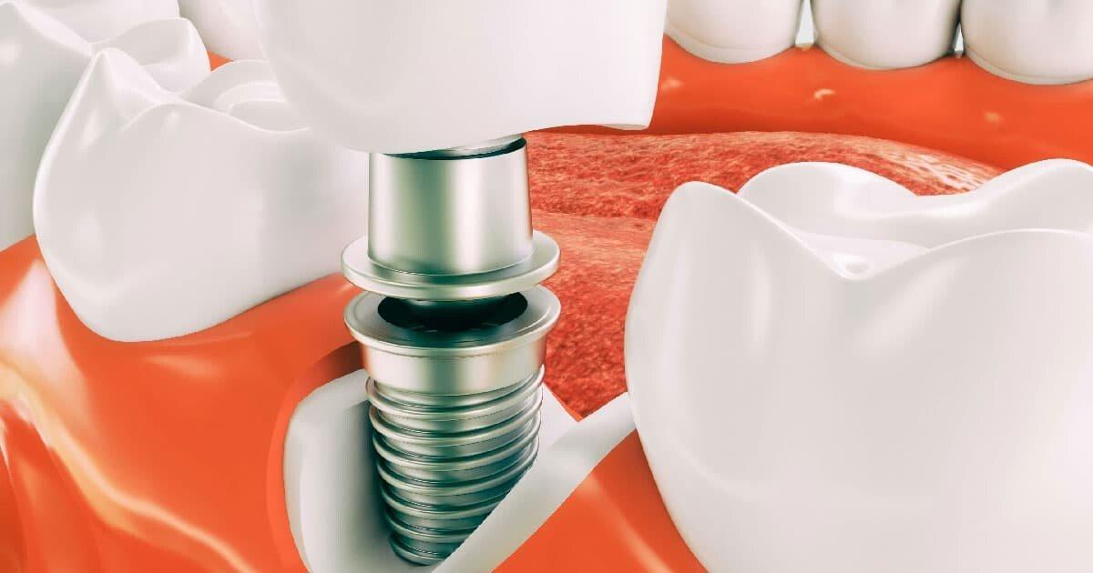 От чего зависит эксплуатационный срок имплантов и как его продлить?