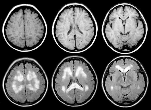 Вредна ли МРТ: полезная информация и рекомендации