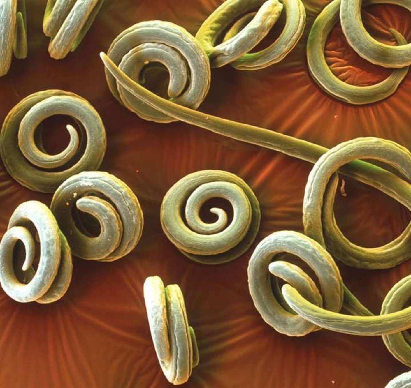 Препараты от паразитов: как выбрать