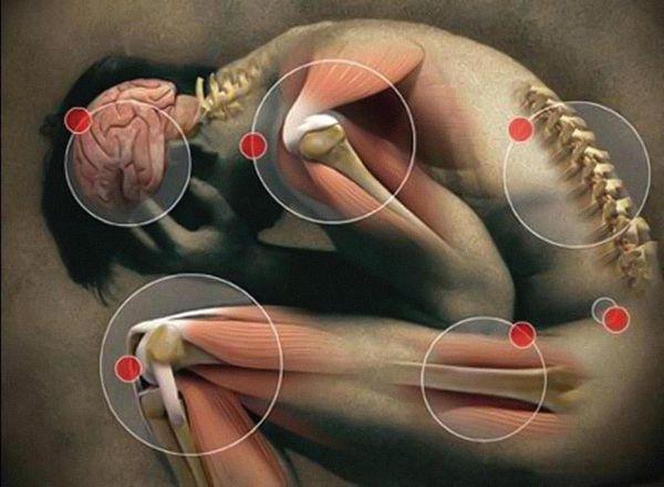 Большие и малые критерии для диагностики синдрома хронической усталости